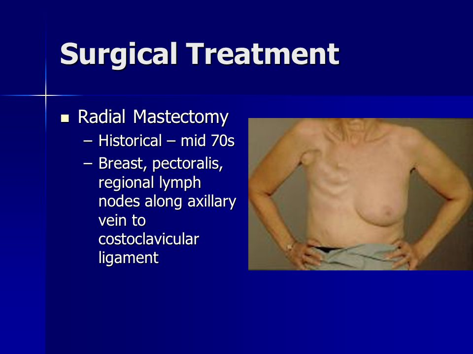 Surgical Treatment Total Mastectomy axillary dissection Total Mastectomy axillary dissection TM + Skin sparing w/reconstruction TM + Skin sparing w/reconstruction