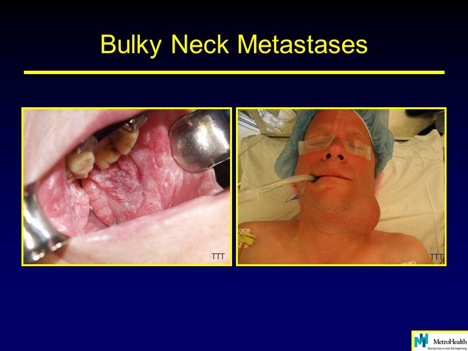 Bulky Neck Metastases TTT