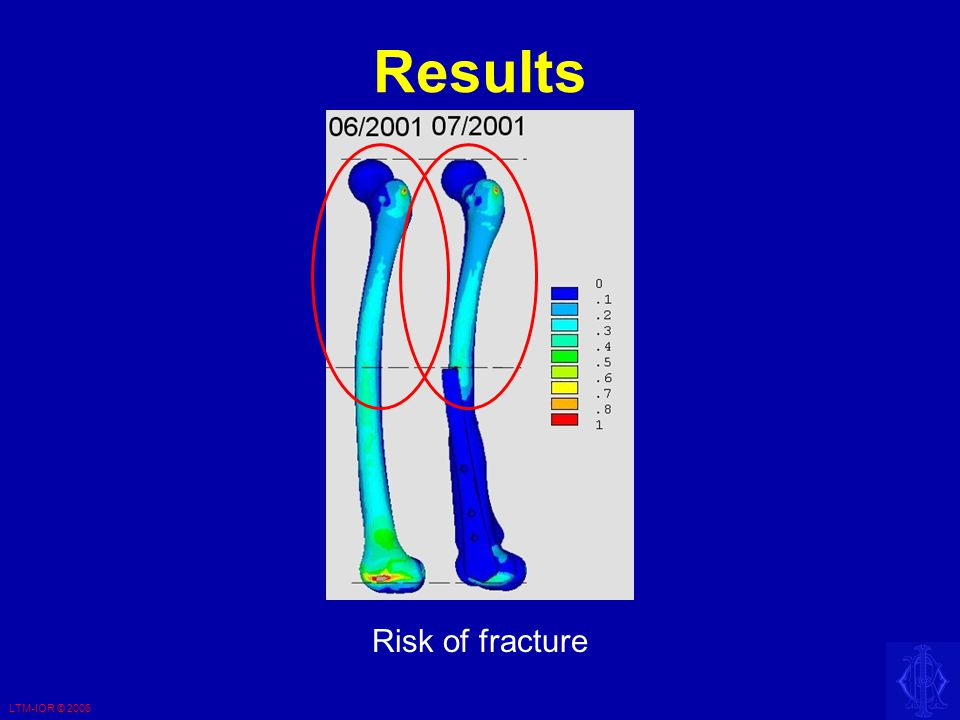 LTM-IOR © 2006 Results Risk of fracture