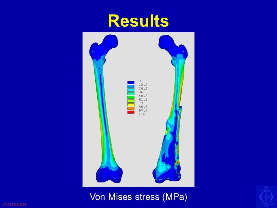 LTM-IOR © 2006 Results Von Mises stress (MPa)