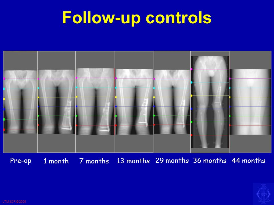 LTM-IOR © 2006 Follow-up controls 1 month7 months 13 months 29 months 36 months 44 months Pre-op