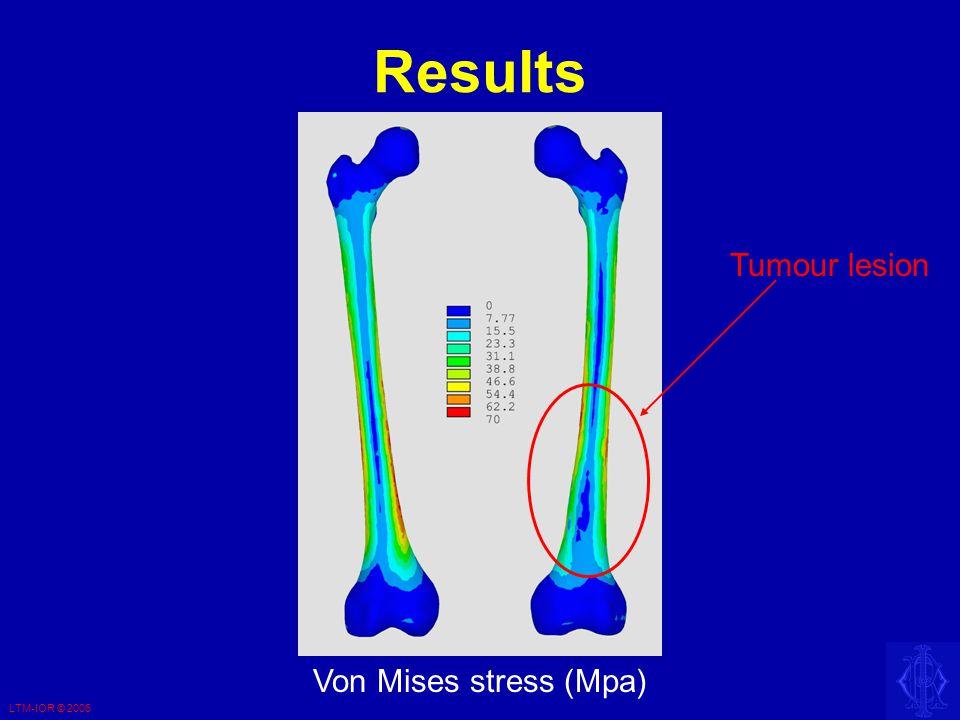LTM-IOR © 2006 Results Von Mises stress (Mpa) Tumour lesion