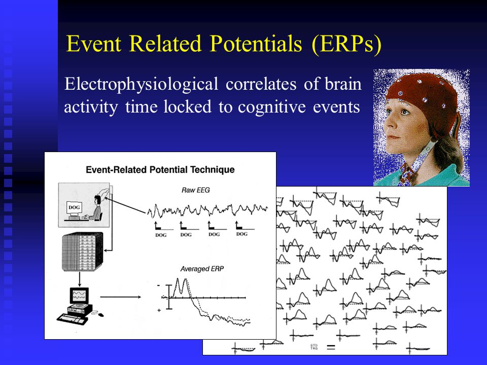 Event Related Potentials (ERPs) Electrophysiological correlates of brain activity time locked to cognitive events
