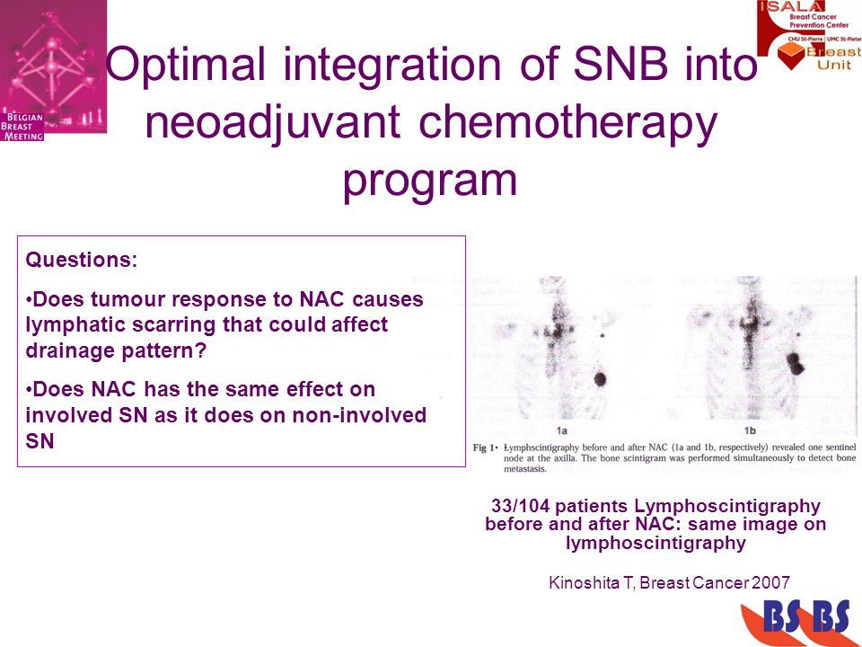 Optimal integration of SNB into neoadjuvant chemotherapy program 33/104 patients Lymphoscintigraphy before and after NAC: same image on lymphoscintigraphy Kinoshita T, Breast Cancer 2007 Questions: Does tumour response to NAC causes lymphatic scarring that could affect drainage pattern.