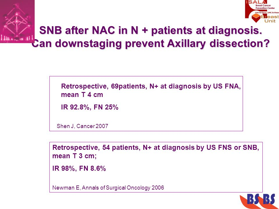 SNB after NAC in N + patients at diagnosis. Can downstaging prevent Axillary dissection? Retrospective, 69patients, N+ at diagnosis by US FNA, mean T