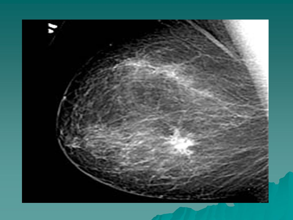  Diagnosis Triple assesment Triple assesment Clinical Examination-site,size for staging Clinical Examination-site,size for staging Mammogram/US scan in < 40-45 years Mammogram/US scan in < 40-45 years FNAC/Core(trucut) biopsy FNAC/Core(trucut) biopsy Metastatic Survey General and systemic examination General and systemic examination Xray chest Xray chest US scan Abdomen and Pelvis US scan Abdomen and Pelvis LFT LFT FBC,SC FBC,SC Bone Scan,CT scan–depending on the Bone Scan,CT scan–depending on the symptom symptom