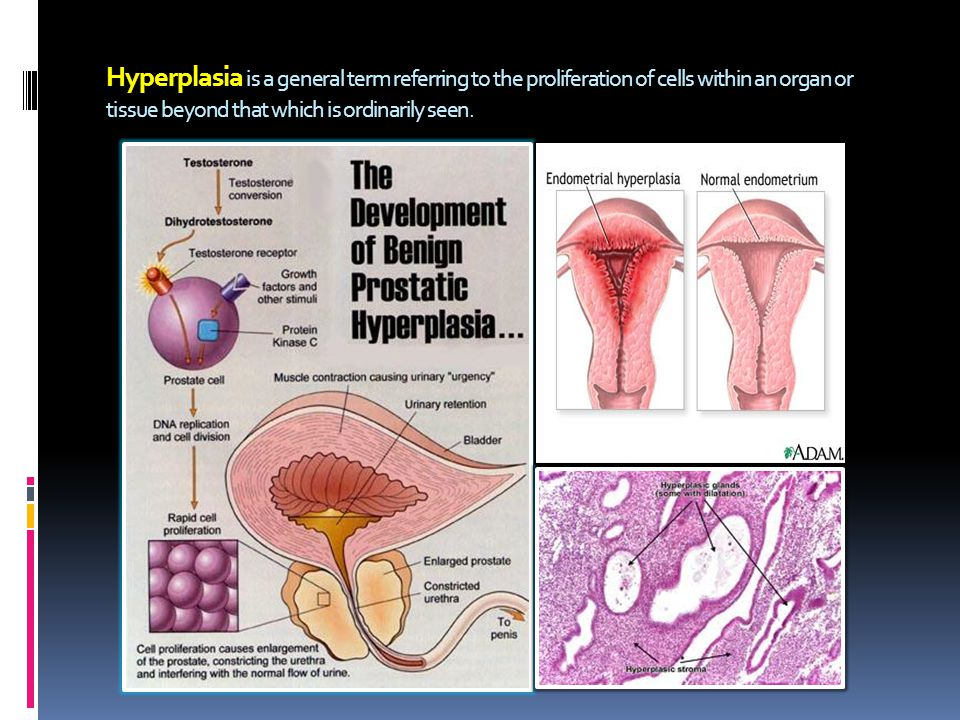 Hyperplasia is a general term referring to the proliferation of cells within an organ or tissue beyond that which is ordinarily seen.