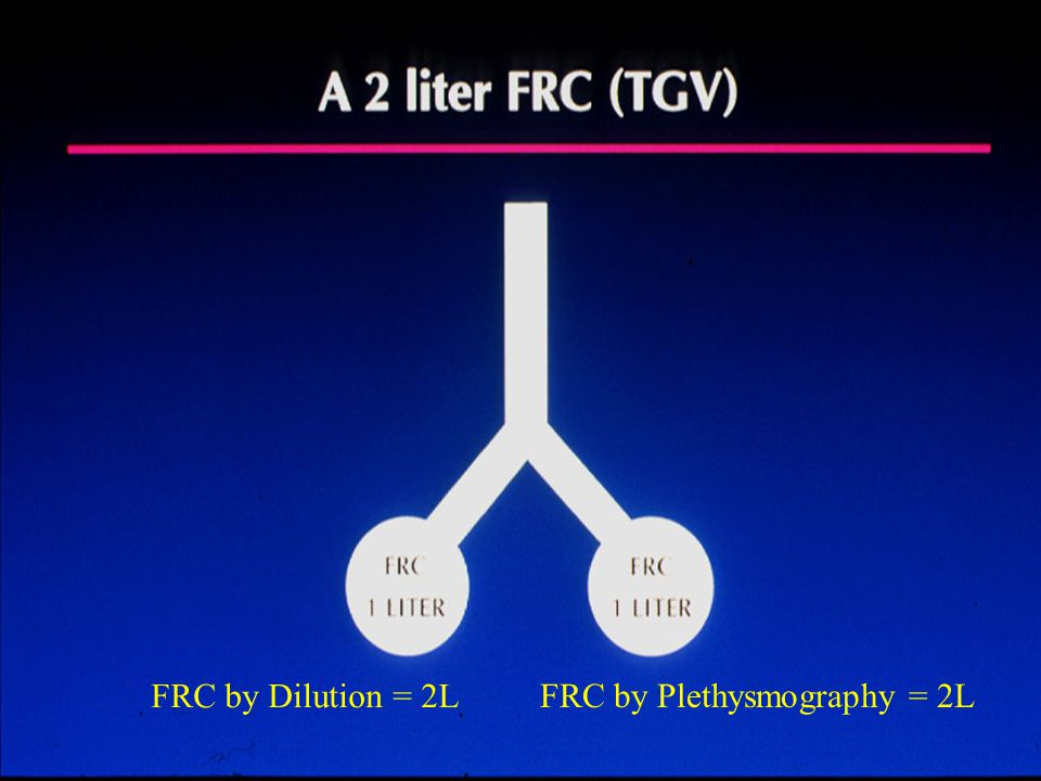 ANTICIPATE AND SOLVE UNMET NEEDS RELENTLESSLY MAKE IMPROVEMENTS PROVIDE UNMATCHED SERVICE AND SUPPORT 20 FRC by Dilution = 2L FRC by Plethysmography = 2L