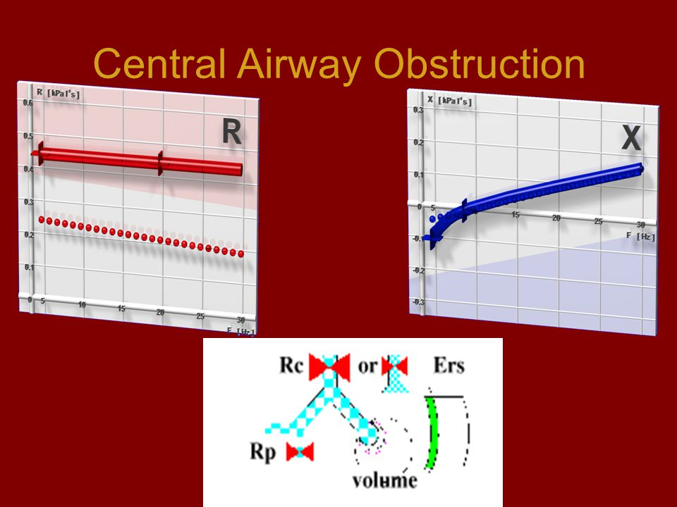 Central Airway Obstruction
