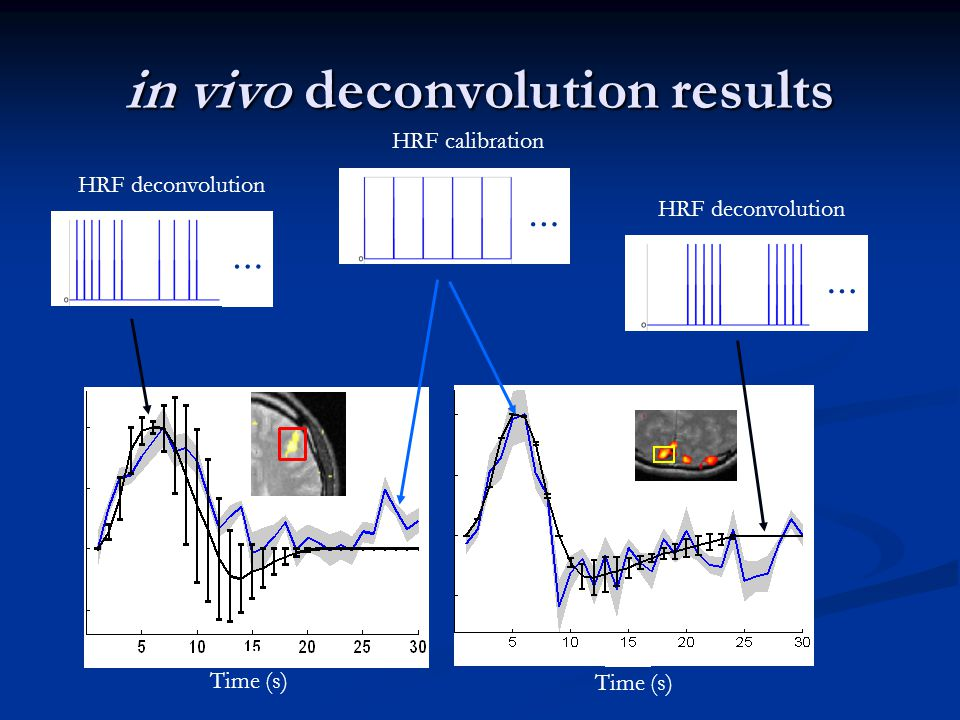 in vivo deconvolution results … HRF calibration … HRF deconvolution … Time (s)