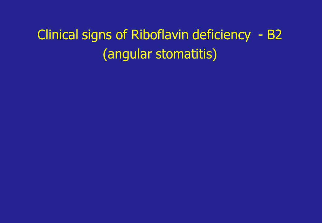 Clinical signs of Riboflavin deficiency - B2 (angular stomatitis)