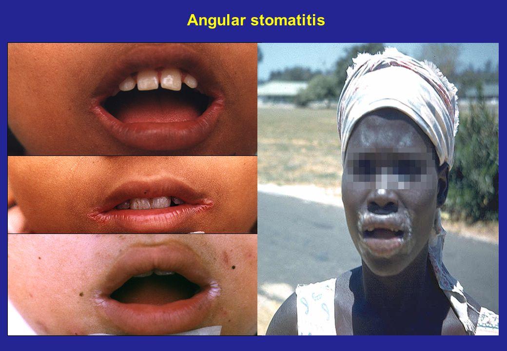 Angular stomatitis