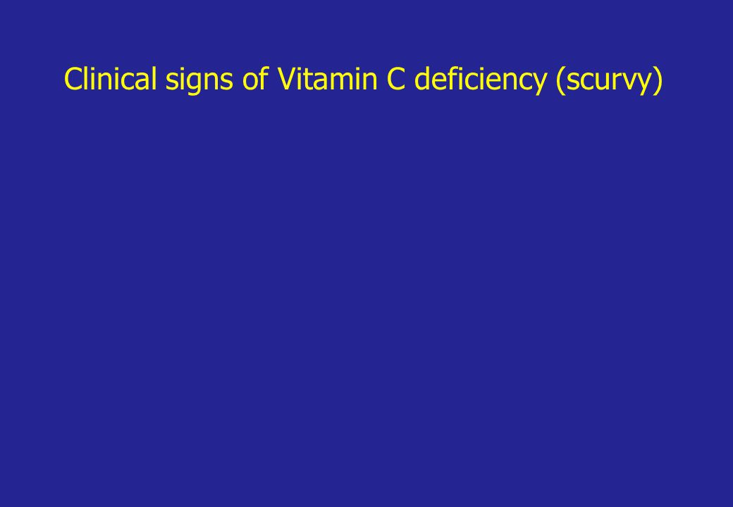 Clinical signs of Vitamin C deficiency (scurvy)