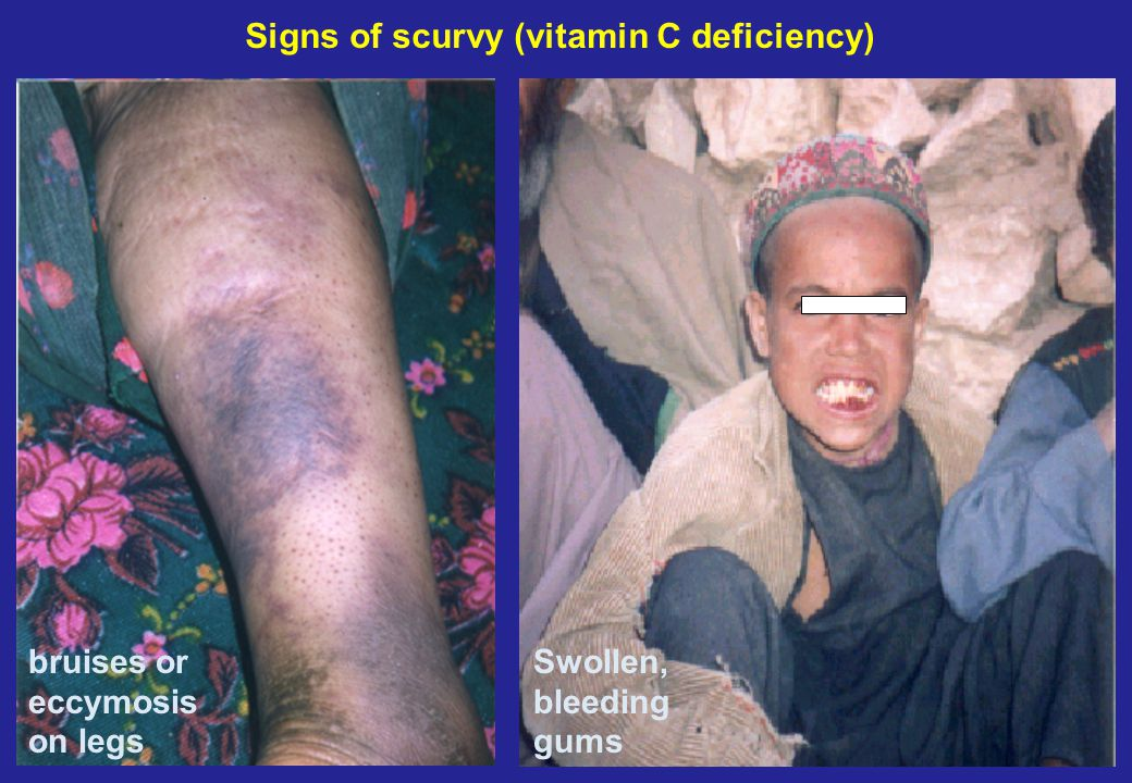 bruises or eccymosis on legs Swollen, bleeding gums