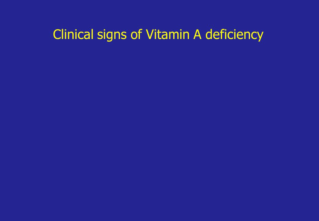Clinical signs of Vitamin A deficiency