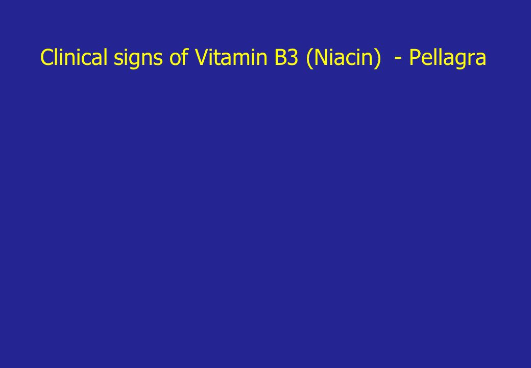 Clinical signs of Vitamin B3 (Niacin) - Pellagra
