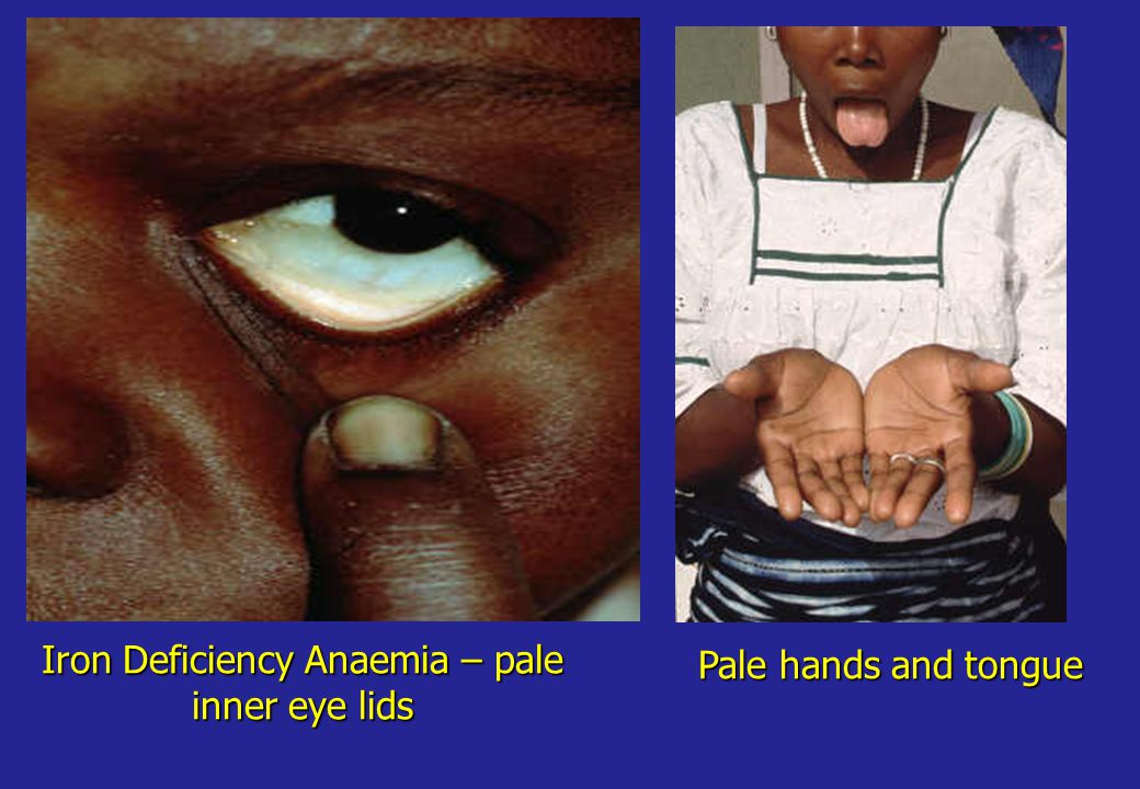 Iron Deficiency Anaemia – pale inner eye lids Pale hands and tongue