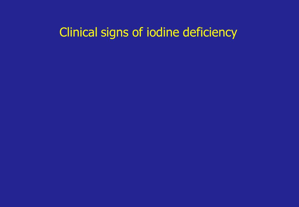 Clinical signs of iodine deficiency