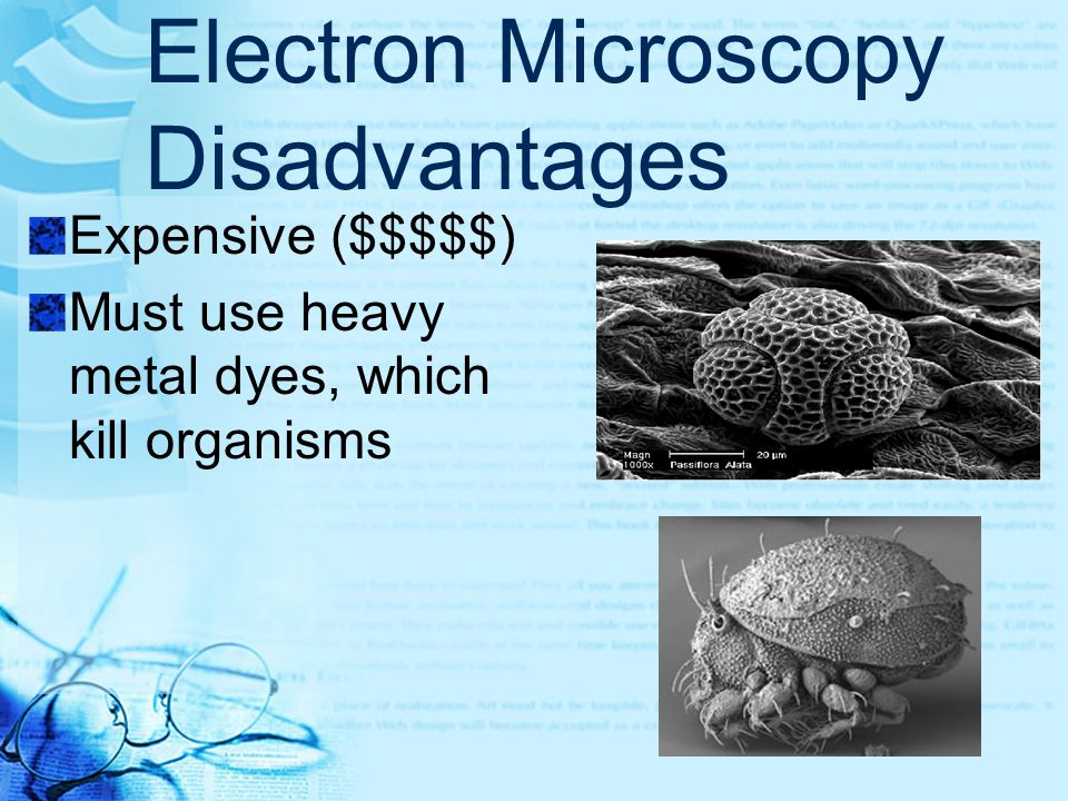 Electron Microscopy Advantages Can magnify 1000's of times Details are easily visible HIV, magnified 24,000x