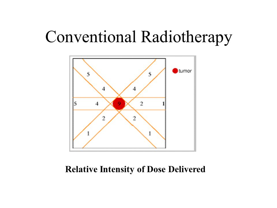 Conventional Radiotherapy Relative Intensity of Dose Delivered