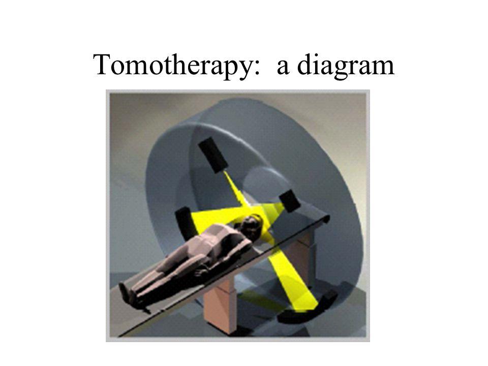Tomotherapy: a diagram