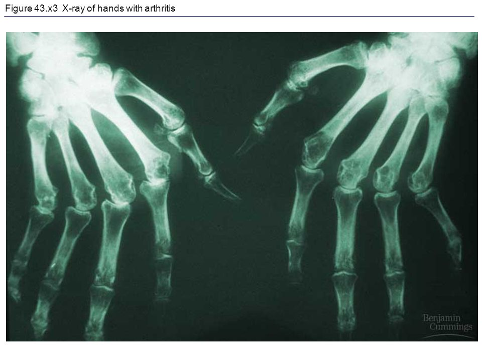 Figure 43.x3 X-ray of hands with arthritis