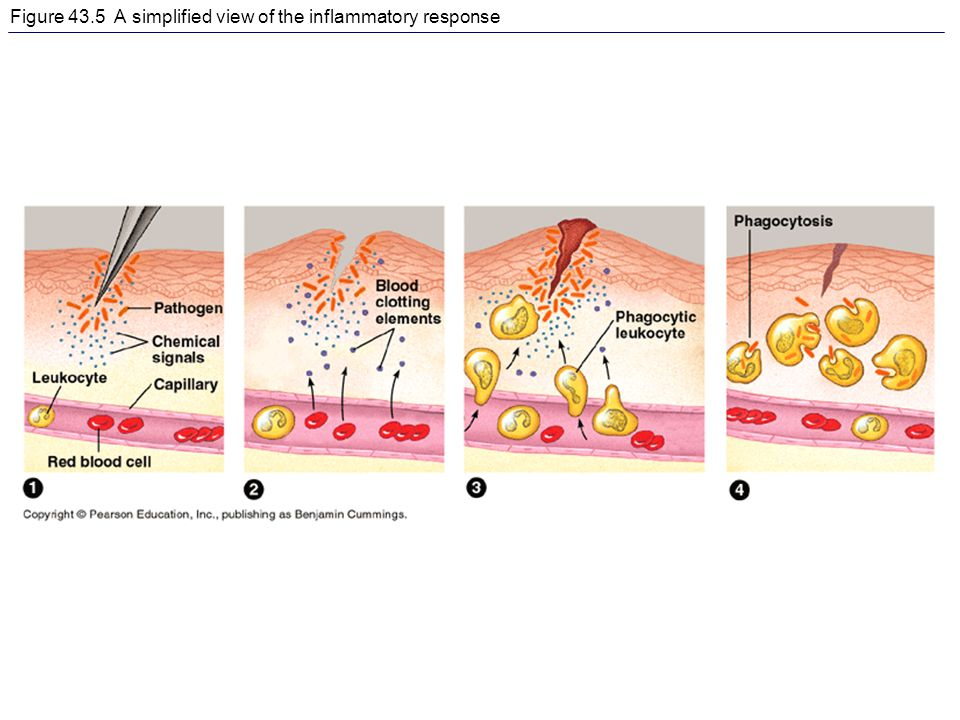 Figure 43.5 A simplified view of the inflammatory response