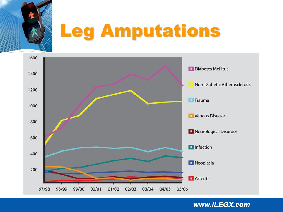 www.ILEGX.com Leg Amputations
