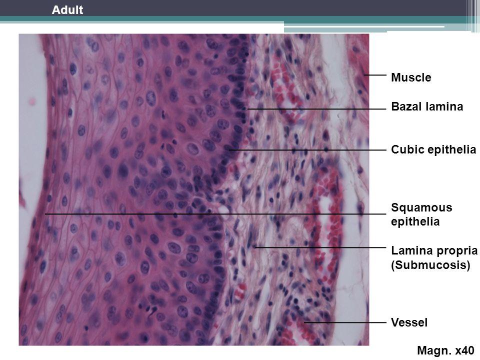 Muscle Bazal lamina Cubic epithelia Squamous epithelia Lamina propria (Submucosis) Vessel Magn.