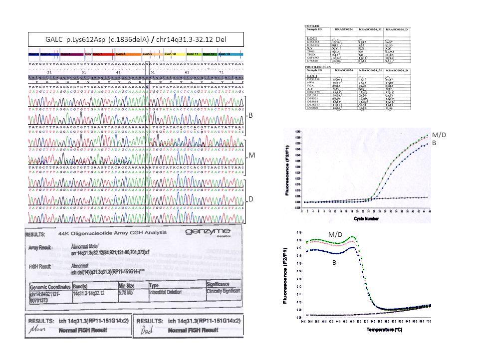 GALC p.Lys612Asp (c.1836delA) / chr14q31.3-32.12 Del D M B M/D B B