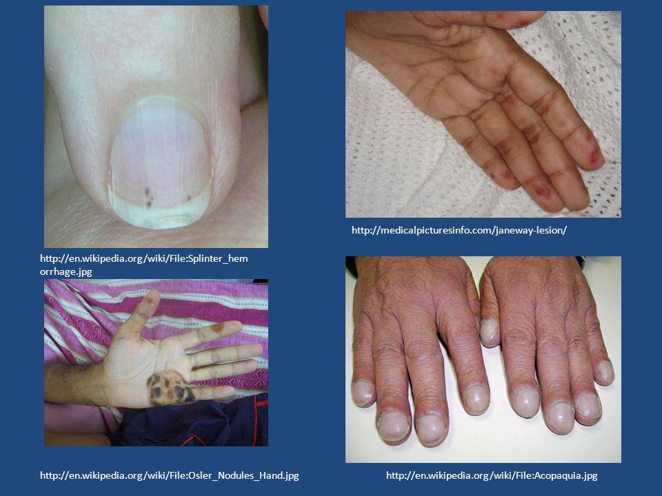 http://en.wikipedia.org/wiki/File:Acopaquia.jpg http://en.wikipedia.org/wiki/File:Splinter_hem orrhage.jpg http://en.wikipedia.org/wiki/File:Osler_Nodules_Hand.jpg http://medicalpicturesinfo.com/janeway-lesion/