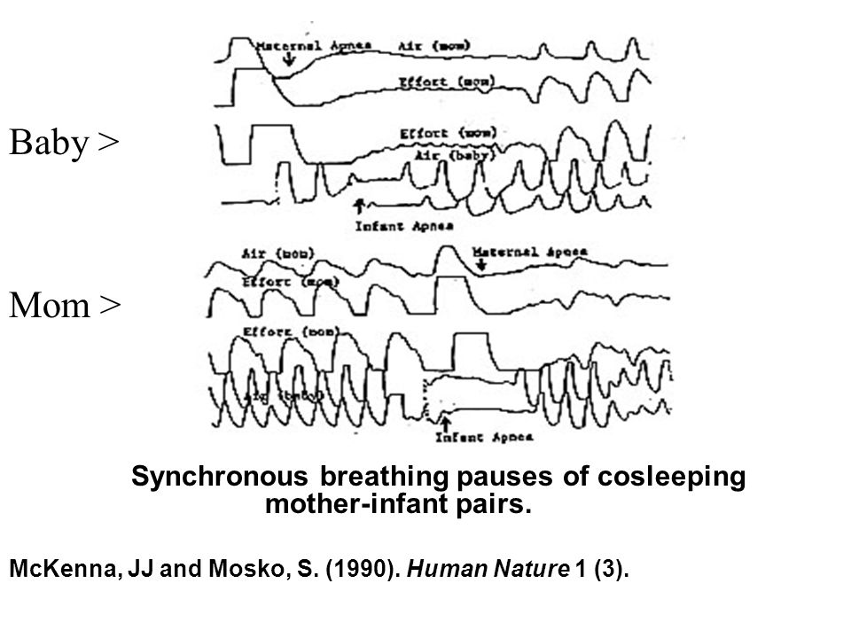 Figure Synchronous breathing pauses of cosleeping mother-infant pairs. McKenna, JJ and Mosko, S. (1990). Human Nature 1 (3). Baby > Mom >