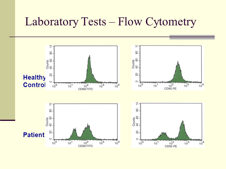 Laboratory Tests – Flow Cytometry CD59CD55 Healthy Control Patient