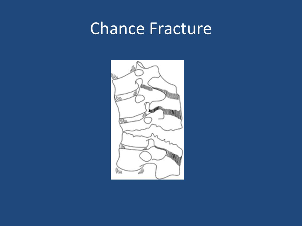 Chance Fracture