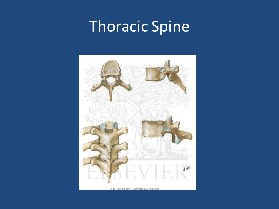 Spinal Shock – Transient loss of spinal reflexes – Lasts 24-72 hours Neurogenic shock – Reduced tissue perfusion due to loss of sympathetic outflow and un-apposed vagal tone – Peripheral vasodilatation – Rx.: fluid resuscitation