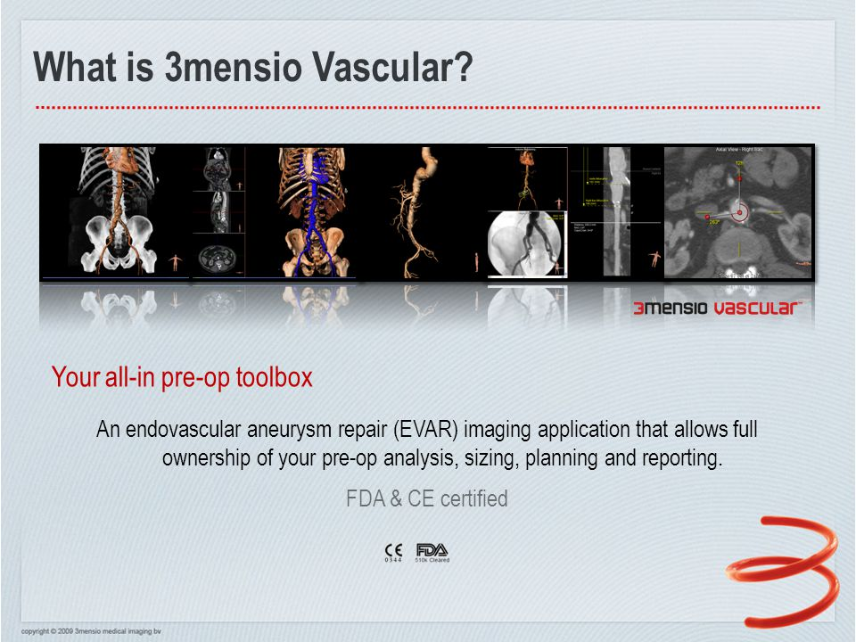 v4.2 – Platform Improvements Multi Opacity Curves  Better visualization of soft tissues  Intuitive UI for defining curves
