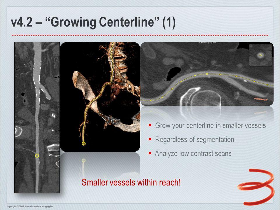 v4.2 – Growing Centerline (2)  Grow your centerline in smaller vessels  Regardless of segmentation  Analyze peripheral scans
