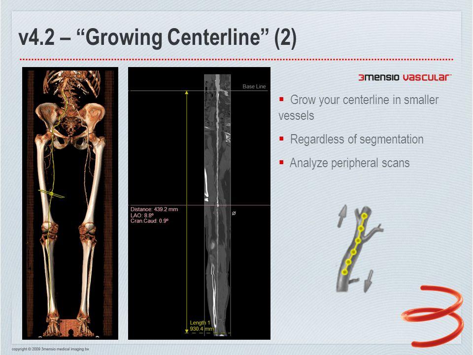 v4.2 – Growing Centerline (3) How far can we grow?