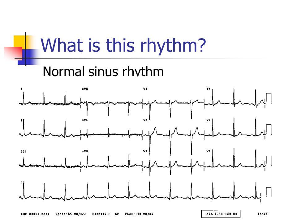 What is this rhythm? Normal sinus rhythm