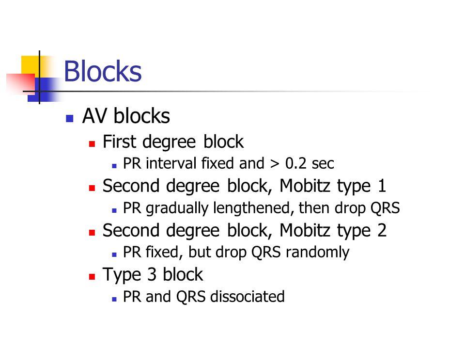 Blocks AV blocks First degree block PR interval fixed and > 0.2 sec Second degree block, Mobitz type 1 PR gradually lengthened, then drop QRS Second degree block, Mobitz type 2 PR fixed, but drop QRS randomly Type 3 block PR and QRS dissociated