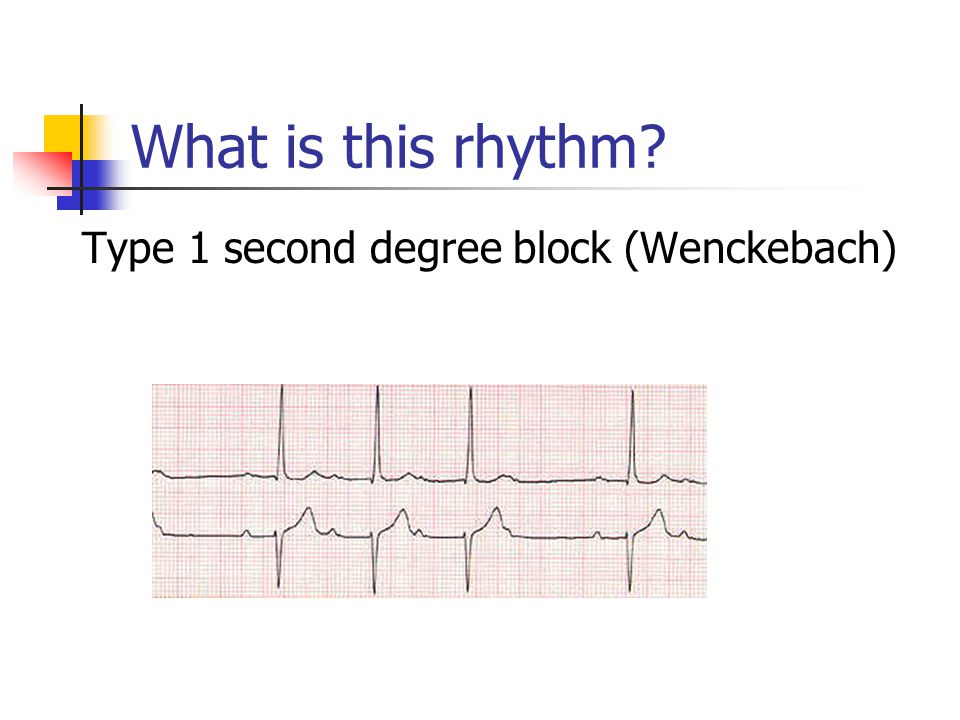 What is this rhythm? Type 1 second degree block (Wenckebach)