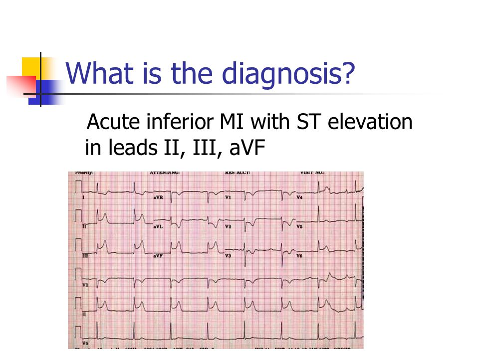 What is the diagnosis? Acute inferior MI with ST elevation in leads II, III, aVF