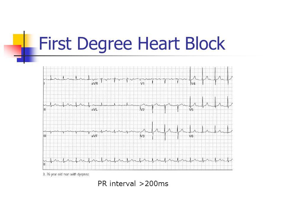 First Degree Heart Block PR interval >200ms