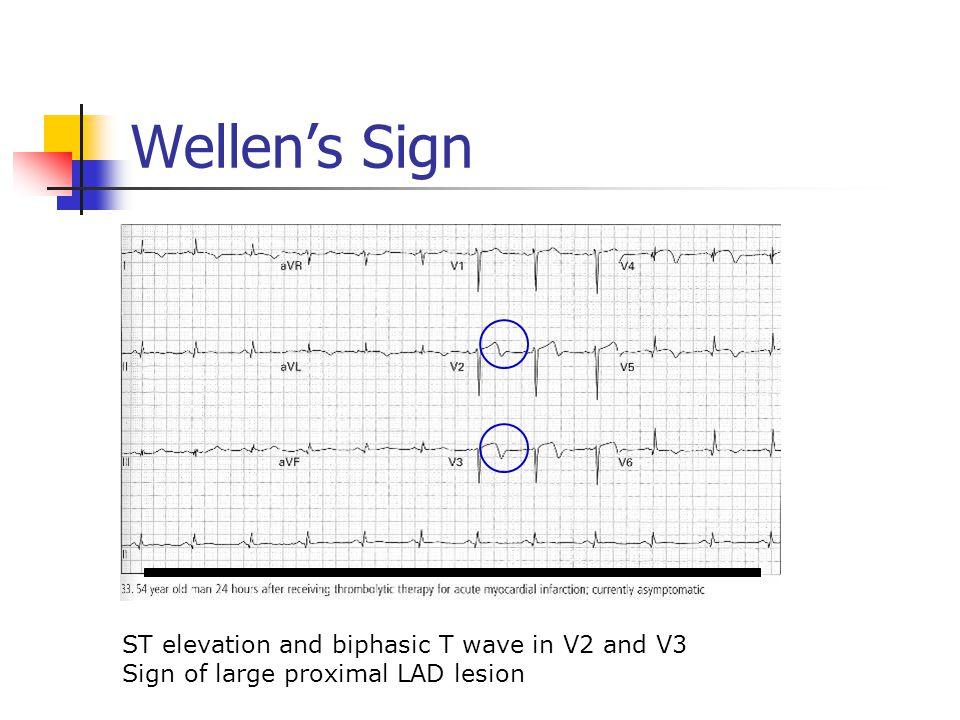 Wellen's Sign ST elevation and biphasic T wave in V2 and V3 Sign of large proximal LAD lesion