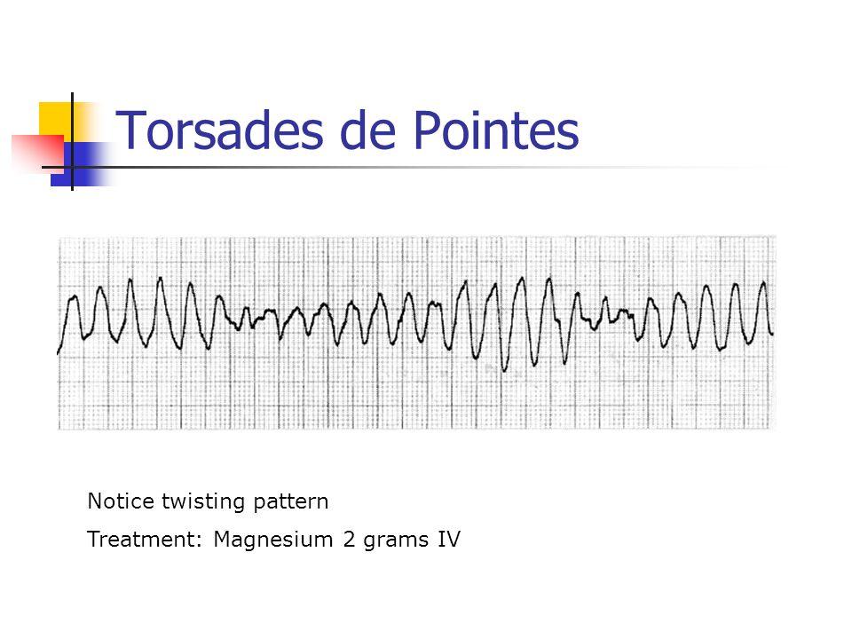 Torsades de Pointes Notice twisting pattern Treatment: Magnesium 2 grams IV