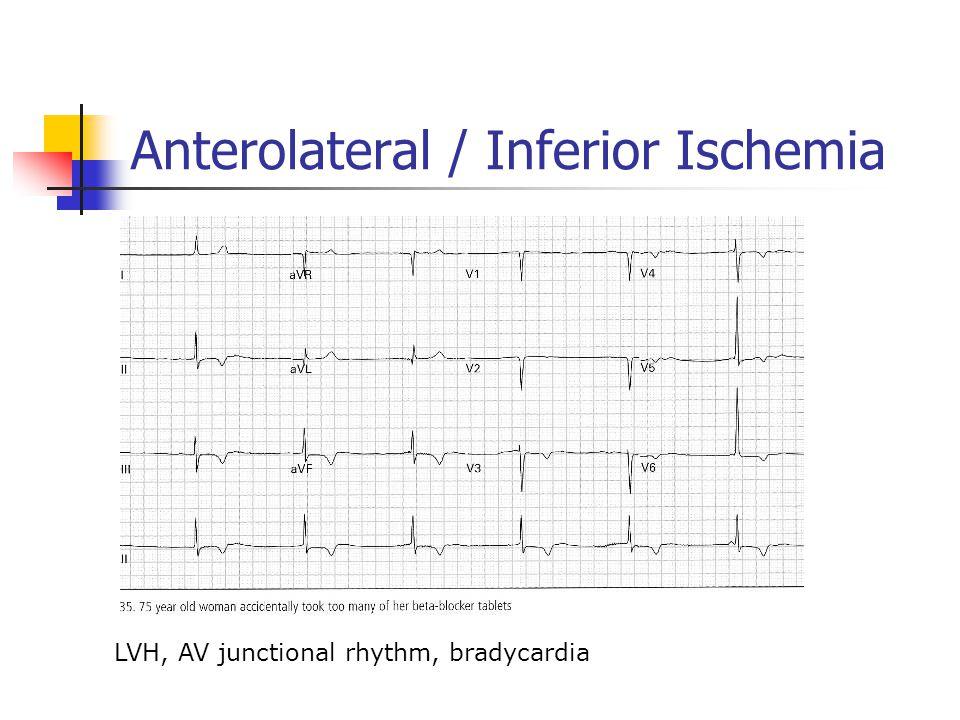 Anterolateral / Inferior Ischemia LVH, AV junctional rhythm, bradycardia