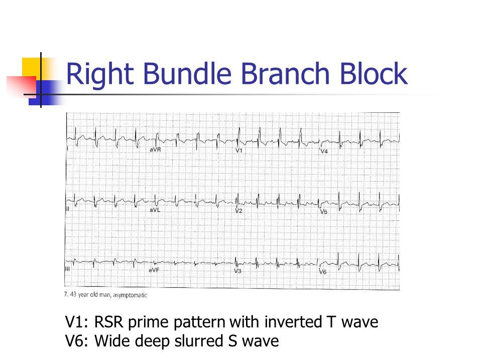 Right Bundle Branch Block V1: RSR prime pattern with inverted T wave V6: Wide deep slurred S wave