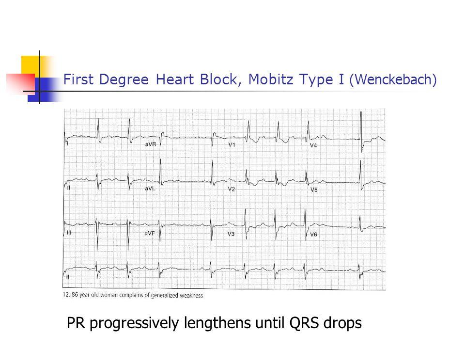 First Degree Heart Block, Mobitz Type I (Wenckebach) PR progressively lengthens until QRS drops