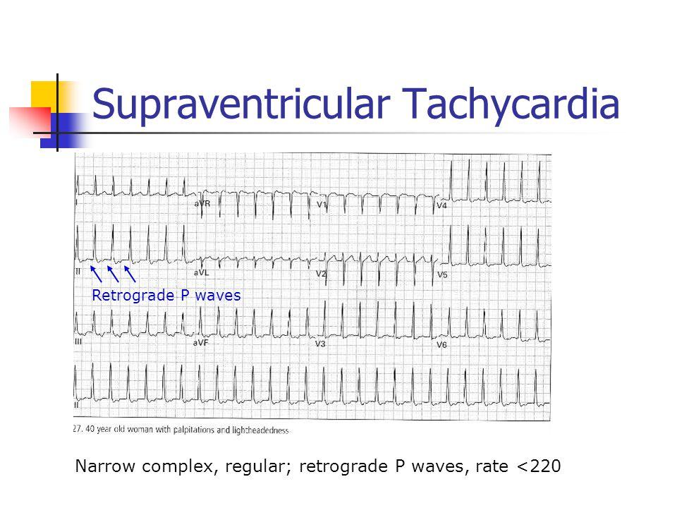 Supraventricular Tachycardia Narrow complex, regular; retrograde P waves, rate <220 Retrograde P waves