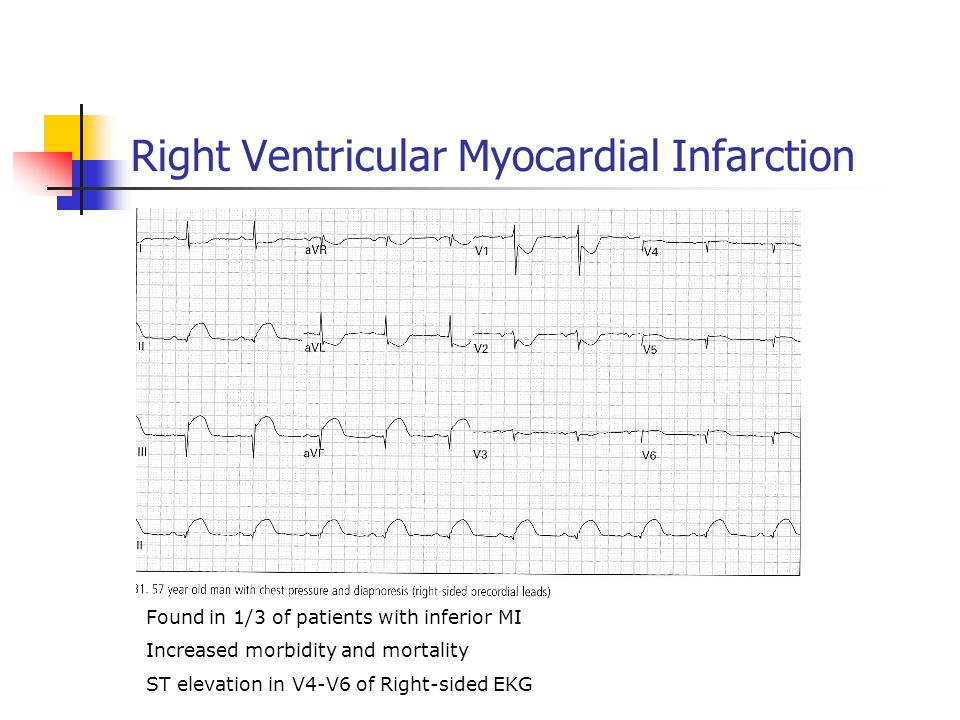 Right Ventricular Myocardial Infarction Found in 1/3 of patients with inferior MI Increased morbidity and mortality ST elevation in V4-V6 of Right-sided EKG